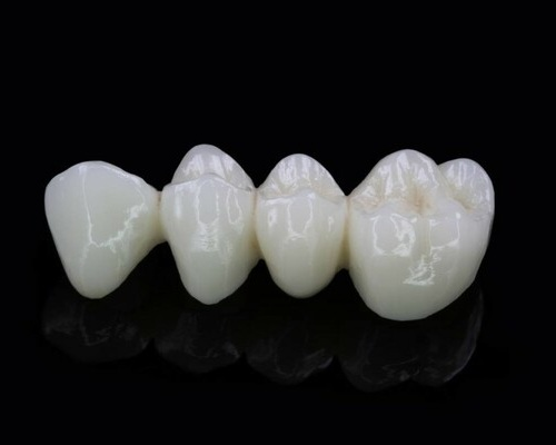 Цирконевые зубные мосты