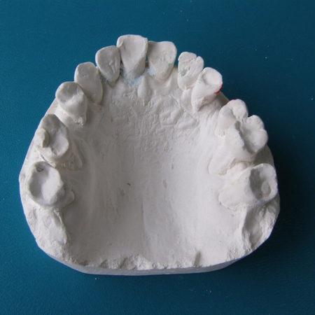 Оттиски для гипсовых моделей челюстей