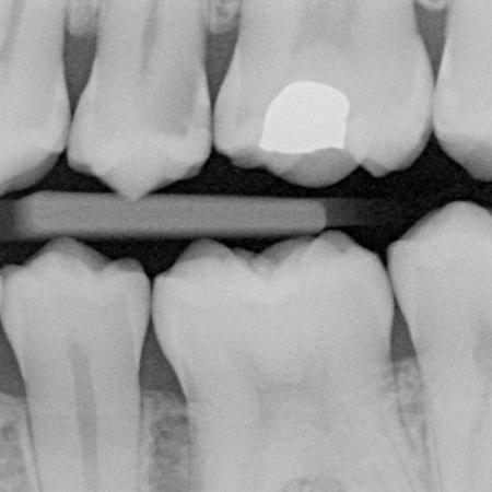 Внутриротовая рентгенография