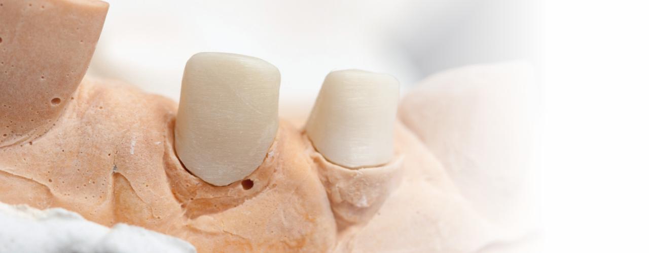 Стоматологическая вкладка