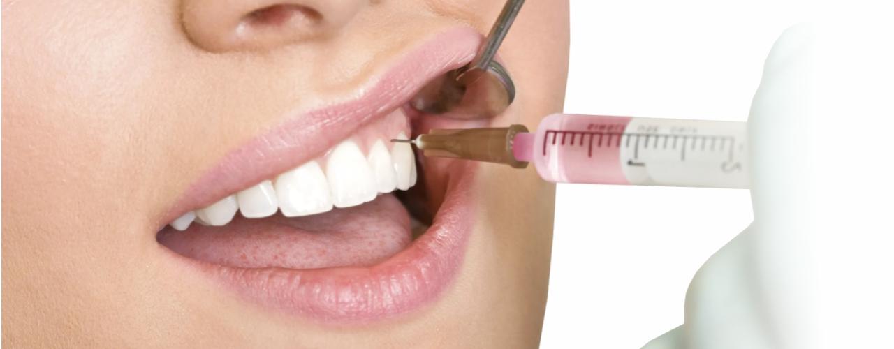 Плазмотерапия десен в Семейной стоматологии Тонус В Нижнем Новгороде